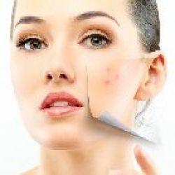 Tinh chất Massage mặt Trị Mụn